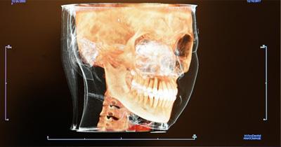 歯並び 精密検査