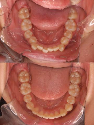乱杭歯 矯正治療 症例写真