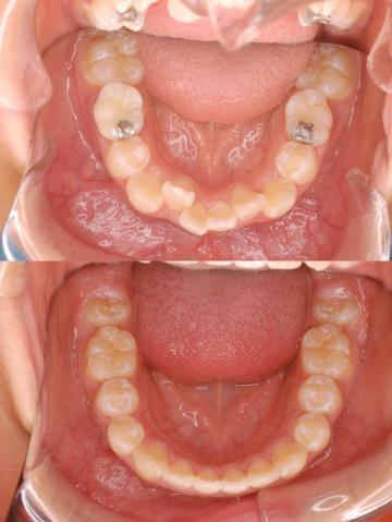 出っ歯 矯正 症例写真