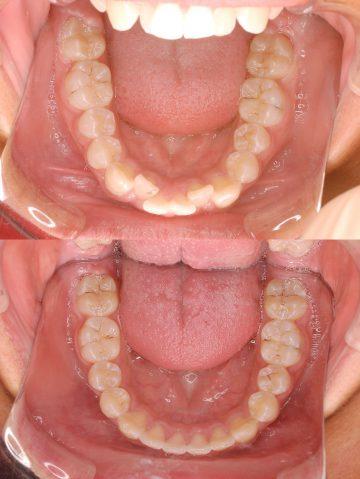 乱ぐい歯 矯正 治療 症例写真